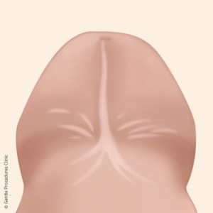 After circumcision, there may be a band on the underside of the penis